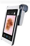 VEOS 手持式皮膚鏡