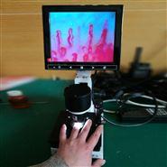电子显微镜高清微循环检测仪
