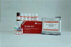 人干扰素 γ(IFN-γ)ELISA试剂盒