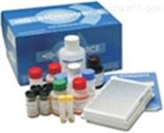 人肌球蛋白輕鏈 ELISA試劑盒