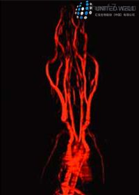 Visvover'sMRI 造影剂