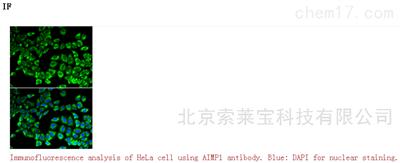 Anti-AIMP1 Polyclonal Antibody