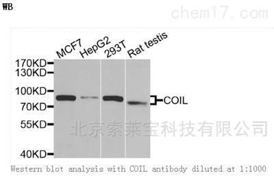 Anti-COIL Polyclonal Antibody