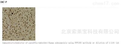 Anti-PPP1R8 Polyclonal Antibody