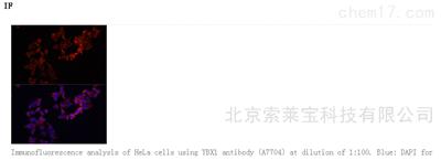 Anti-YBX1 Polyclonal Antibody