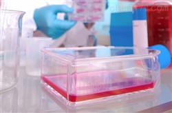 HS683HS683 人脑胶质瘤细胞/STR鉴定