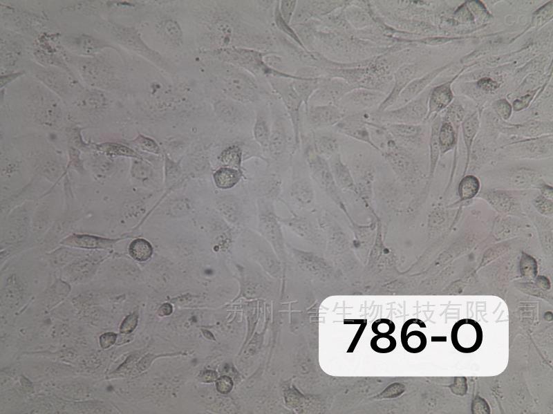 通过STR鉴定786-o人肾透明细胞腺癌细胞
