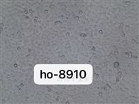HO-8910通过STR鉴定人卵巢癌细胞HO-8910