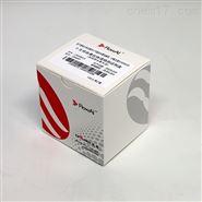 抗磷脂綜合征 (APS) 抗體(IgG/IgM)測定試劑