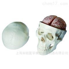 带脑动脉头颅骨模型